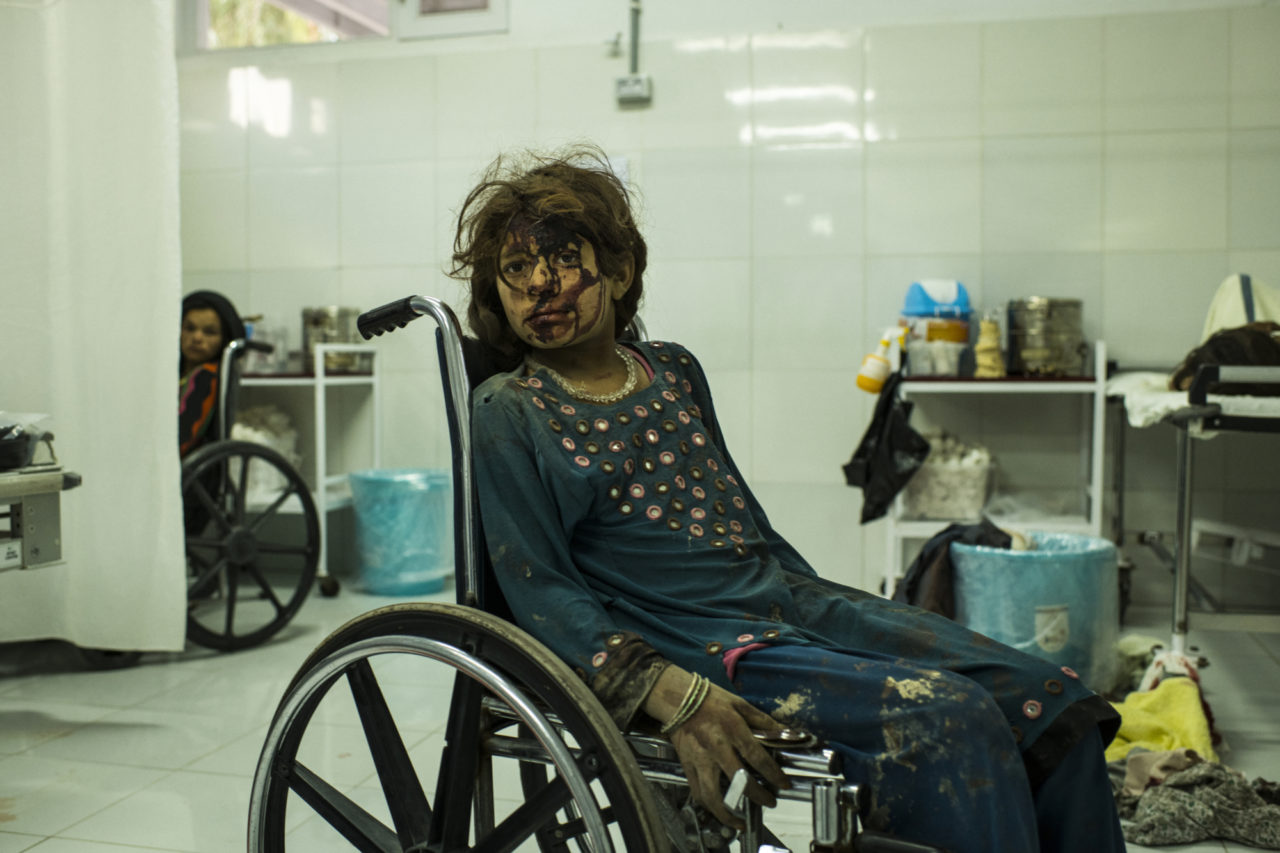A girl with a bloodied face from a head wound sits in a wheelchair in a hospital ward